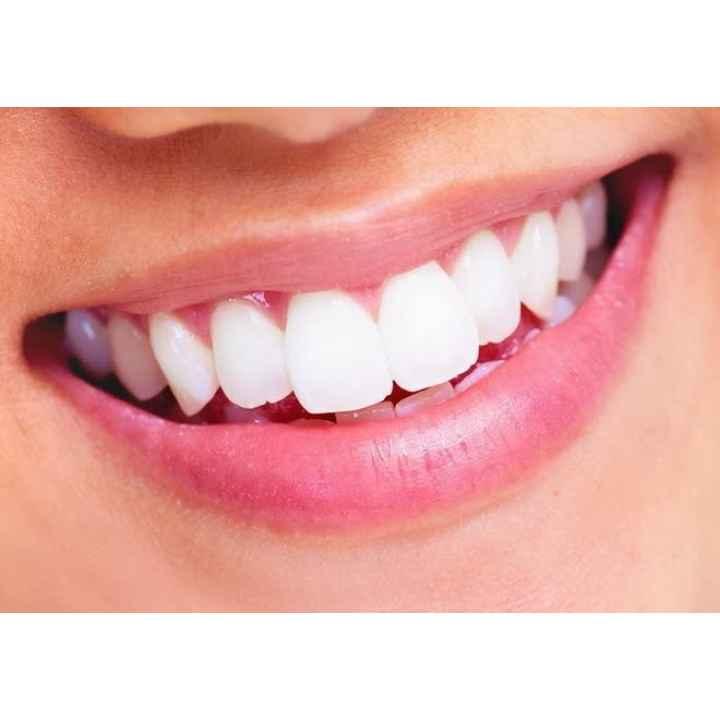 Белоснежная улыбка. Отбеливание зубов