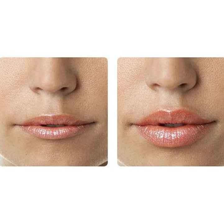 Процедура увеличение губ